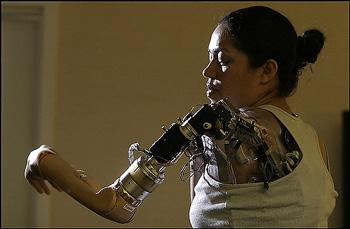 Claudia Mitchell met haar nieuwe arm
