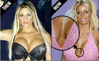 grotere borsten zonder operatie